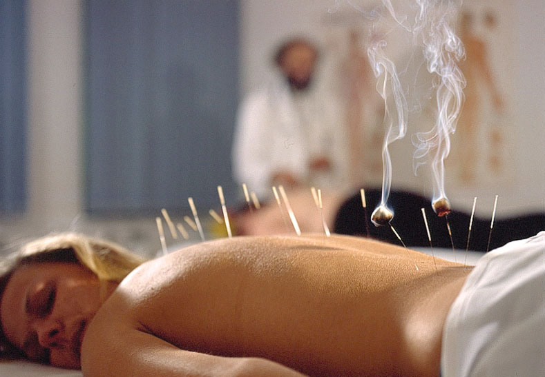 Relaxing with acupuncture treatment
